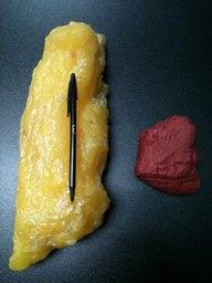 fat vs muscle 2
